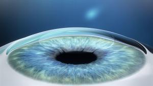 Sehkorrektur - durch das Entfernen der Linse wird die Form der Hornhaut verändert, wodurch